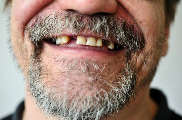 缺牙會影響睡眠品質