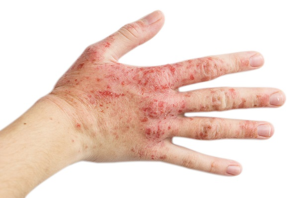 富貴手、汗皰疹,醫師教你解決手部濕疹!